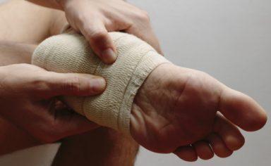 足底筋膜炎(踵骨棘)
